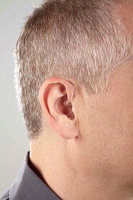 BTE: Behind-the-ear 2