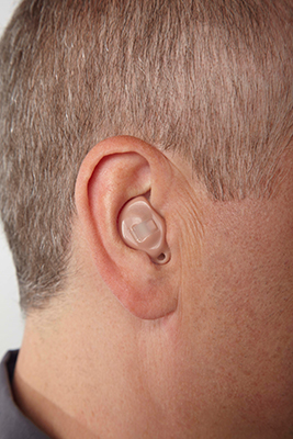 ITE: In-the-Ear
